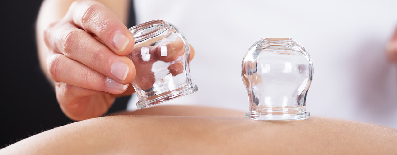 Cupping Therapy Orland Park & Homer Glen, IL